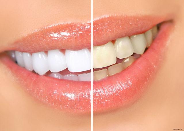 Светоактивируемая система отбеливания зубов