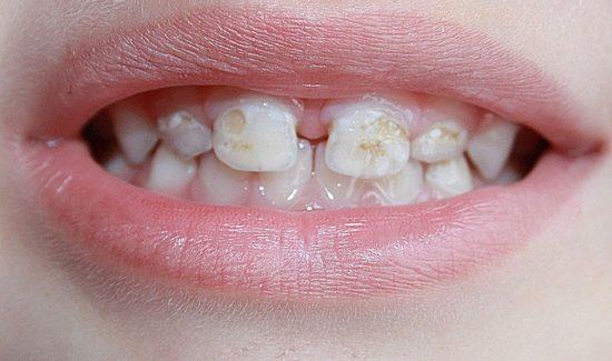 Выбор метода лечения пульпитов молочных зубов