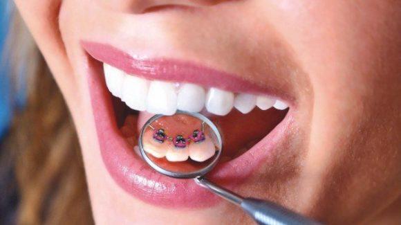 Правильный ортодонт. Вопросы, интересующие всех пациентов.