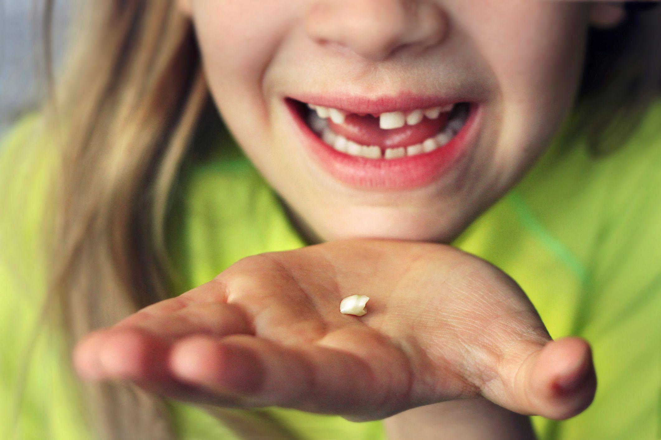 Udalenie-molochnyh-zubov-u-detej