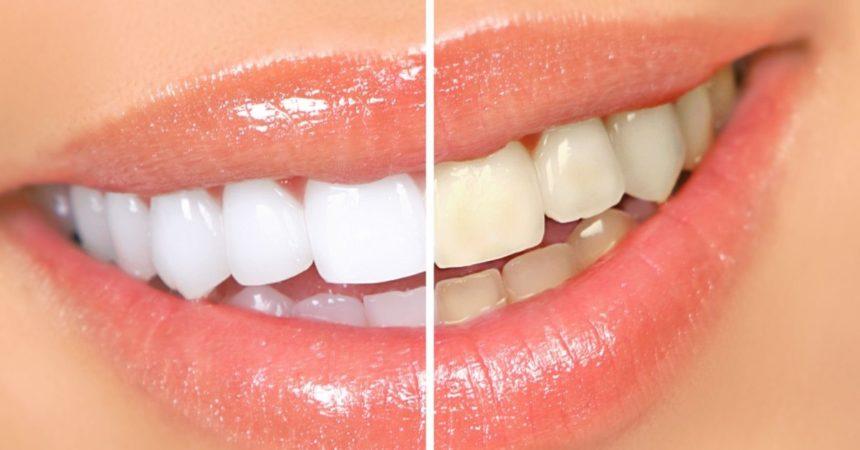 Світлоактивуюча система відбілювання зубів