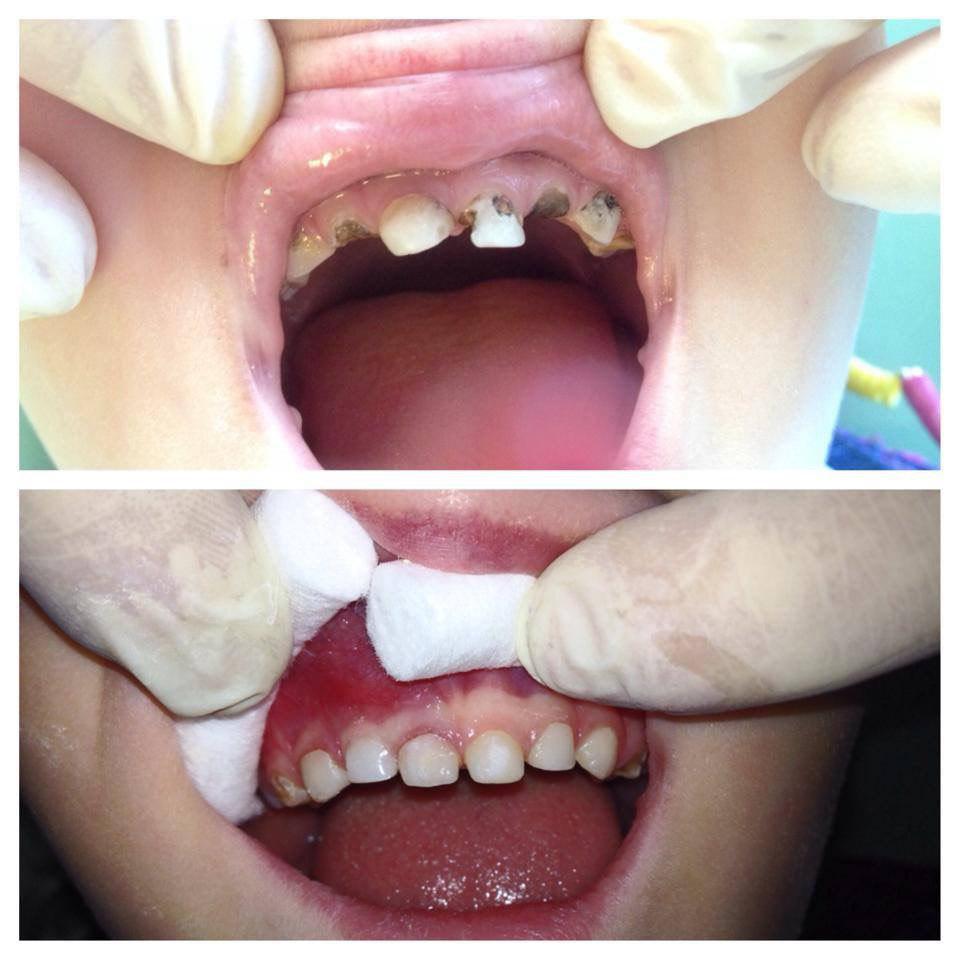 Реставрация молочных зубов на стеклоиномерных штифтах
