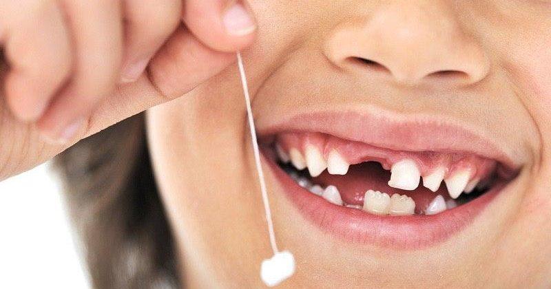 Как удалить молочный зуб ребенку в домашних условиях. Шатающиеся зубы у детей
